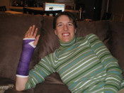 Jess in a purple cast on her broken wrist.